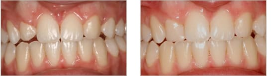 Before and after tooth shaping